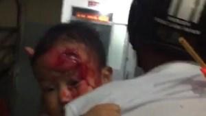 Phê bình kíp trực bệnh viện để người nhà bế con bị thương đi tìm bác sĩ