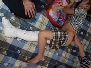 Phụ huynh cháu bé gãy chân: Không muốn ai bị cách chức