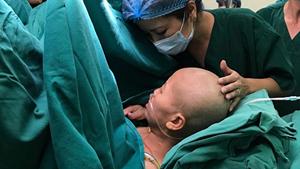 Sức khỏe sản phụ ung thư giai đoạn cuối sinh con đã dần hồi phục