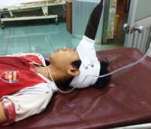 Tặng bằng khen 2 bác sĩ cứu sống bé trai bị dao găm giữa trán