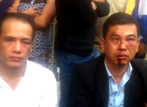 Vụ hai luật sư bị đánh: Khởi tố vụ án Cố ý gây thương tích