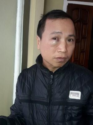Đô Lương, Nghệ An: Bị truy tố vì can ngăn ẩu đả?
