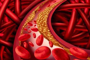 'Làm sạch' mạch máu: Coi chừng tiền mất tật mang