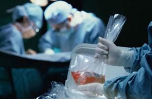 Sớm sửa luật để tăng nguồn hiến tạng