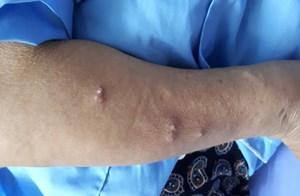 Bộ Y tế yêu cầu giám sát chặt bệnh Whitmore