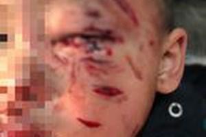 Bé trai 2 tuổi bị chó nhà cắn rách mặt, tổn thương mắt