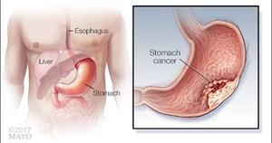 Đừng bỏ qua dấu hiệu của những bệnh ung thư thường gặp