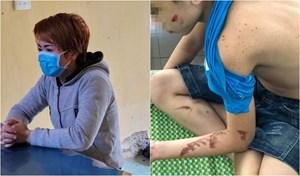 Bạo hành nhân viên: Nữ chủ quán bánh xèo đối diện hình phạt nào?