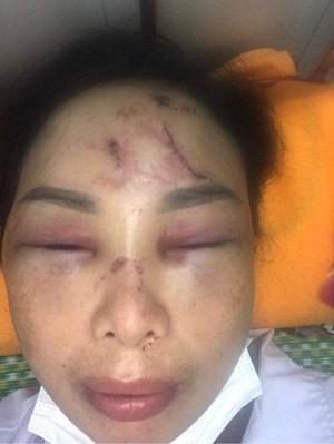 Hải Dương: Vợ 'tố' chồng dùng cực hình tra tấn phải nhập viện