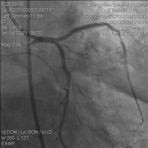 Quảng Nam: Cứu sống bệnh nhân nguy kịch tắc stent do huyết khối