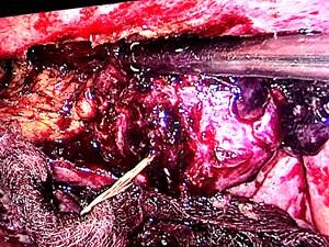 Cần Thơ: Ăn cá, một người dân bị xương đâm thủng ruột