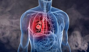 Hơn 20.000 người chết vì ung thư phổi trong năm 2020