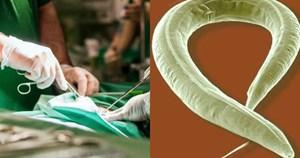 Kỳ tích phẫu thuật hiếm có: Tách giun đũa 15cm ra khỏi gan của trẻ sơ sinh