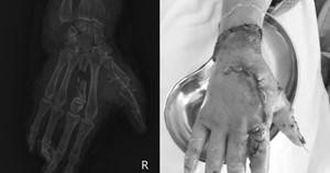 Bất cẩn khi xay đá, người phụ nữ bị dập nát, lóc da cổ tay, bàn tay