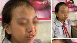 Hà Giang:Tạm đình chỉ cô giáo tát học sinh