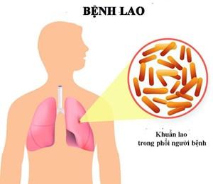 Bệnh lao: Nguy cơ lây nhiễm cao