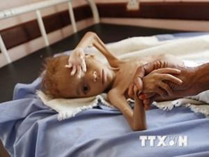 Đức kêu gọi quốc tế nỗ lực hơn trong cuộc chiến chống nạn đói toàn cầu