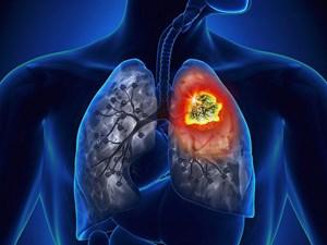 Ung thư phổi đứng thứ hai về tỷ lệ tử vong do ung thư tại Việt Nam
