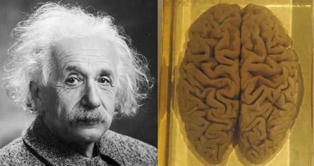 Cái chết của Albert Eistein và hành trình kỳ lạ của bộ não thiên tài - Ảnh 1
