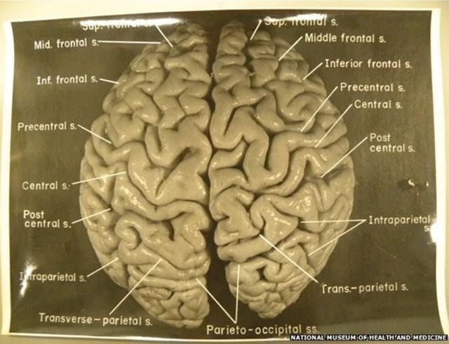 Bộ não của Albert Einstein trước khi được mổ xẻ vào năm 1955. Ảnh: Bảo tàng Y tế và Sức khỏe Quốc gia.