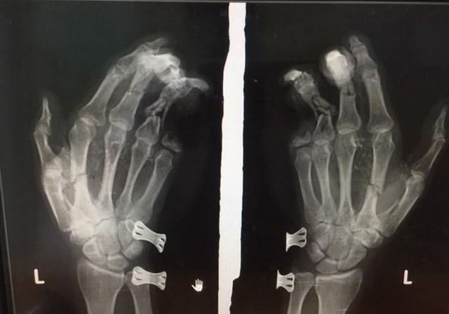 Phim chụp bàn tay của nam thanh niên bị tổn thương do điện thoại phát nổ.