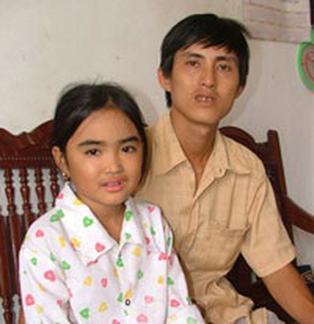 Hình ảnh Diệp và bố 1 năm sau ca ghép gan đặc biệt. Ảnh: Nguyễn Quốc Phòng.