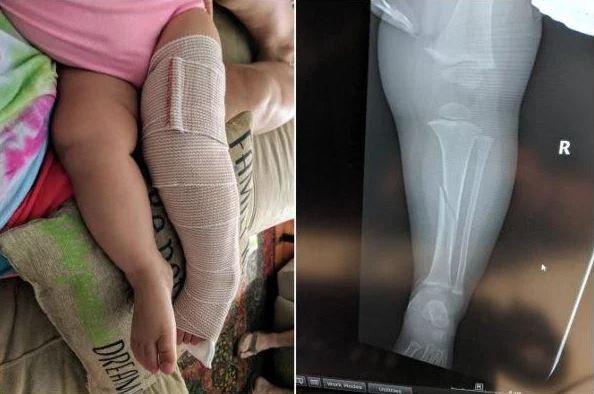 Hình ảnh khi bé Emelyn chơi cầu trượt cùng bố và bị gãy chân.