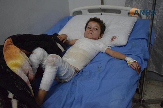 [ẢNH] Những đứa trẻ Syria bị trúng bom trong chiến sự dữ dội của Thổ Nhĩ Kỳ - 2