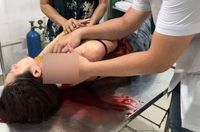 Vụ một phụ nữ bị đâm khi vừa ăn sáng xong: Nghi can ra đầu thú - 1