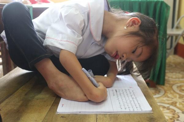 Tặng Bằng khen cho học sinh khuyết tật chân, tay viết chữ đẹp - 2