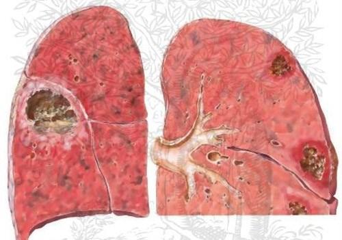 Đề phòng  bệnh áp xe phổi