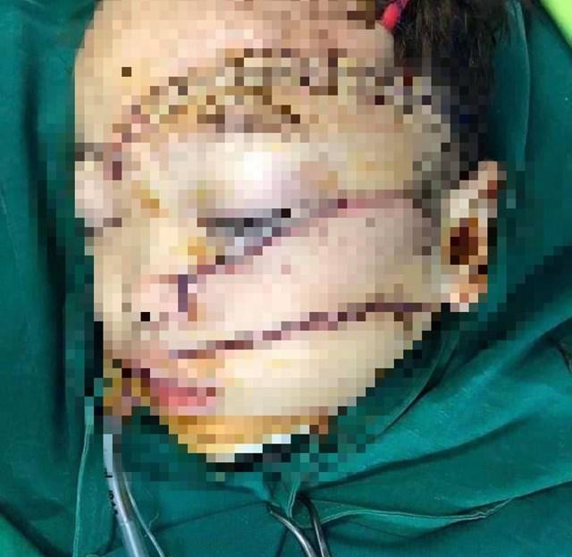 Sức khỏe cháu Phạm Ngọc Minh Kh. đã tạm ổn.