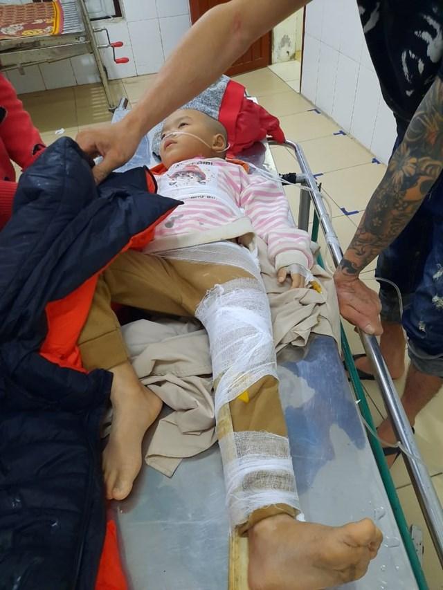 Cháu trai 5 tuổi bị gãy xươngđùi.