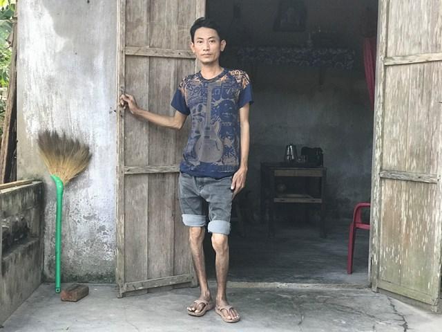 Sau tai nạn, anh Hoàng Văn Tuấn chân thấp, chân cao và ngày càng teo nhỏ lại.