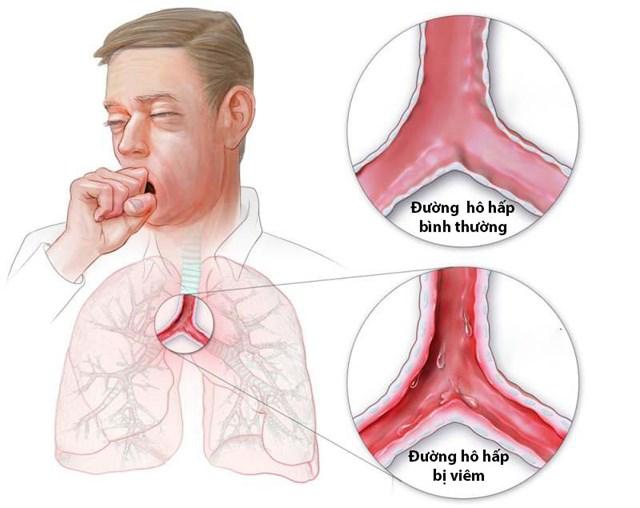 Viêm đường hô hấp là bệnh thường gặp khi trời lạnh. (Ảnh minh hoạ)