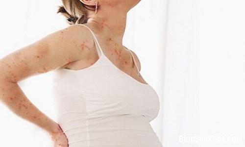 Bà bầu có thể bị viêm da cơ địa, gây cho cơ thể khó chịu trong mùa đông. (Ảnh minh hoạ).