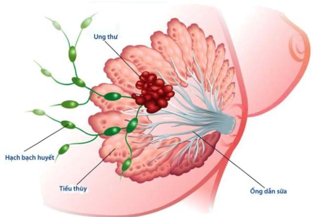 Ung thư vú chia làm 05 giai đoạn. (Ảnh minh hoạ)