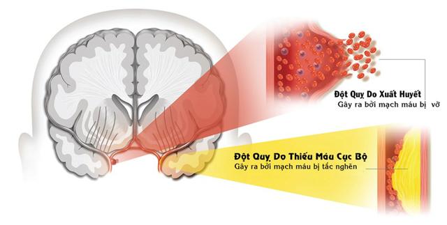 Có hai loại đột quỵ: Đọt quy do xuất huyết và đột quỵ do thiếu máu cục bộ. (Nguồn: Sưu tầm).