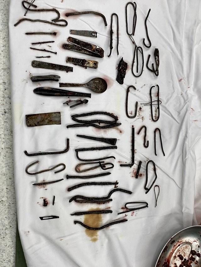 Dị vật nhiều loại kim loại được lấy ra trong dạ dày bệnh nhân.