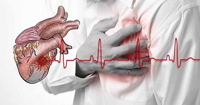 Cảnh báo nguy cơ suy tim, tai biến, đột quỵ - Ảnh 1