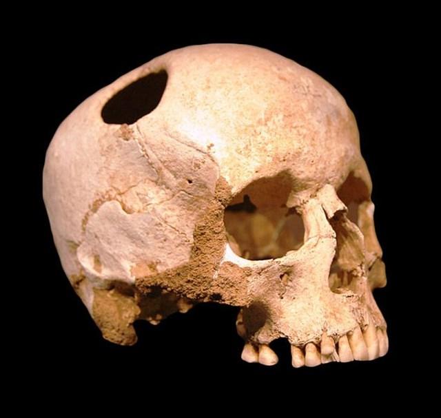 Những phương pháp điều trị y học cổ xưa mãi mãi lưu lại trong quá khứ - Ảnh 14