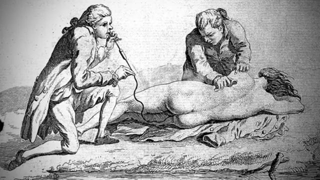 Những phương pháp điều trị y học cổ xưa mãi mãi lưu lại trong quá khứ - Ảnh 15