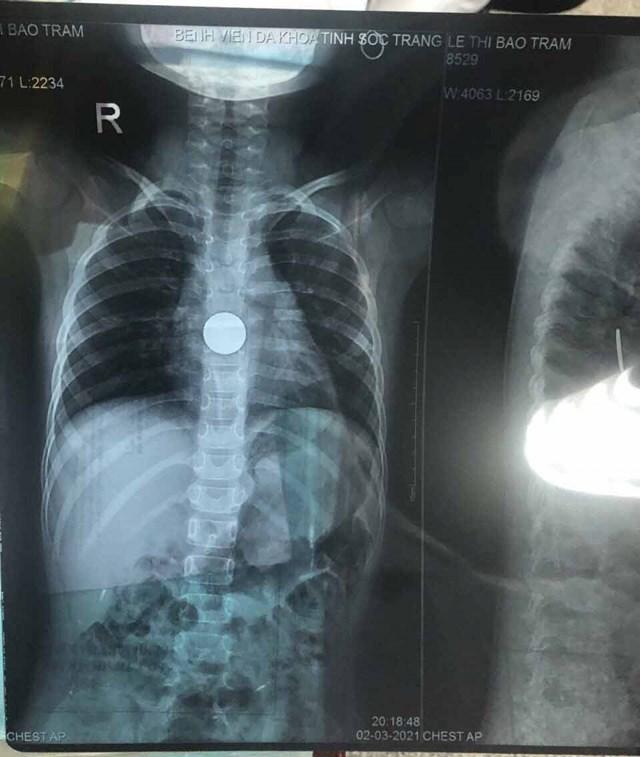 Dị vật được xác định là đồng xu trong cơ thể bé T qua hình ảnh chụp X-Quang.