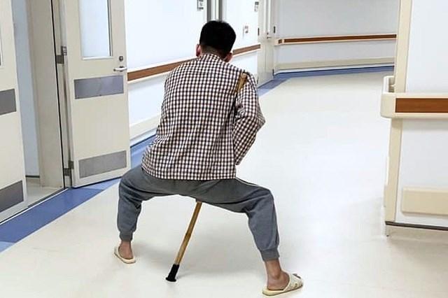 Bệnh nhân viêm cột sống dính khớp biến dạng nặng nề, 2 chân khuỳnh, xoay ra ngoài. Ảnh trước mổ.