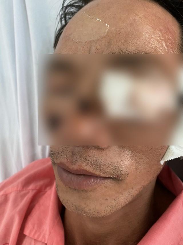 Một nam bệnh nhân bị tổn thương ở mắt do pháo nổ vừa được điều trị tại BV Chợ Rẫy. (Ảnh do BV cung cấp).