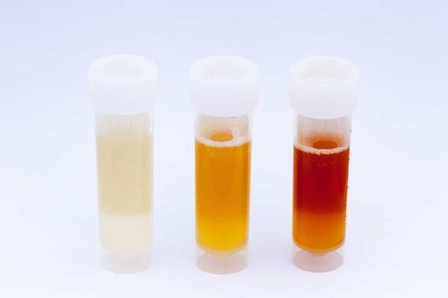 Nước tiểu của trẻ thực sự sẫm màu- Hãy đưa trẻ đến bác sĩ nếu con đi tiểu như nước ngọt.Ngoài ra, đây có thể là dấu hiệu cho thấy có máu trong nước tiểu.