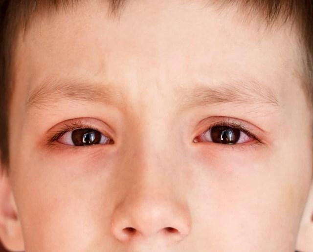 Mắt đỏ và sưng- Lý do của những triệu chứng này khác nhau.Từ dị ứng, đến nhiễm virus hoặc vi khuẩn, trẻ em có các triệu chứng này phải luôn được kiểm tra.