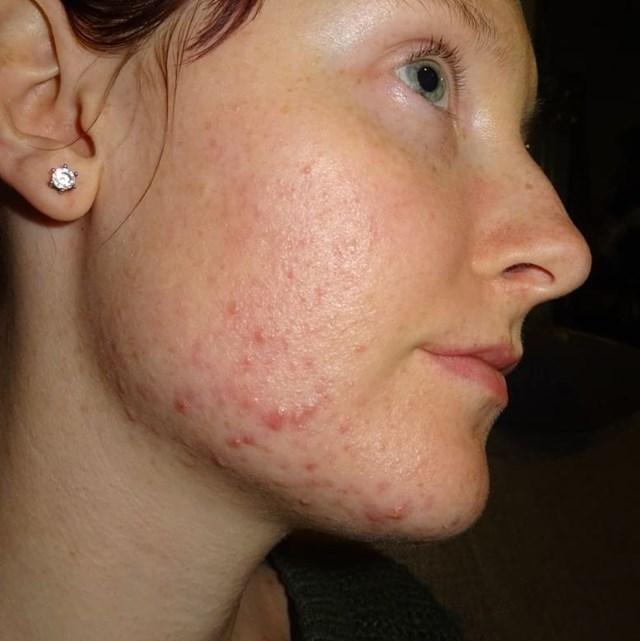 8 dấu hiệu cảnh báo vấn đề về sức khỏe phụ nữ thường bỏ qua - Ảnh 6