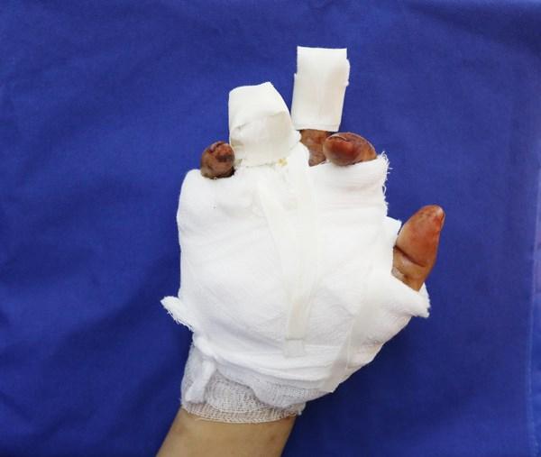 Bàn tay của bệnh nhân sau khi đã được các bác sĩ bệnh viện Việt Nam - Thụy .Điển phẫu thuật bảo tồn ngón tay và xương bàn tay.