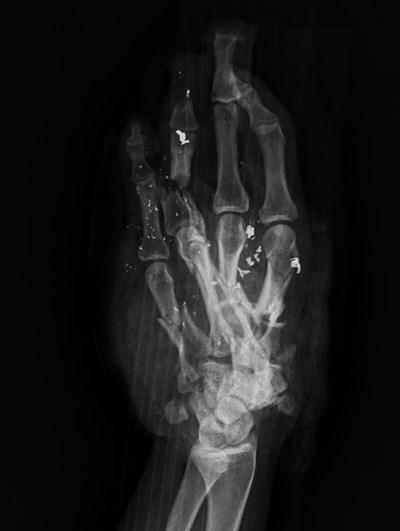 Ảnh chụp X-quang bàn tay phải của người bệnh cho thấy xương tay bị nát.